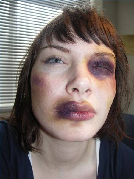 Makeup Ideas bruise makeup : English Corner: 19-year-old man arrested for beating up womanu0026#39;s 5-year ...